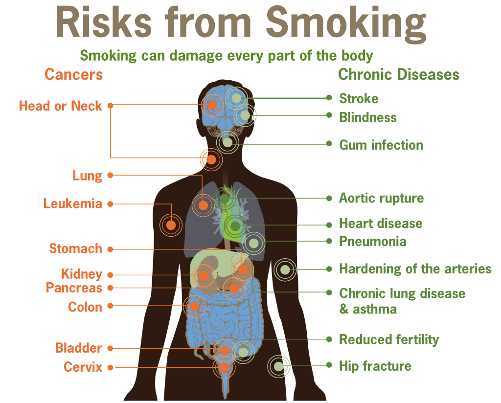 Risks form smoking smoking can damage every part of the body 1024x824 - Does Smoking Really Decreases Your Life Span?