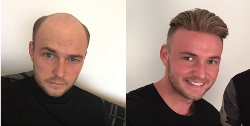 Screenshot 88 - Say Goodbye to Baldness Now You Can Have A Full Head Of Hair In Seconds Without Surgury