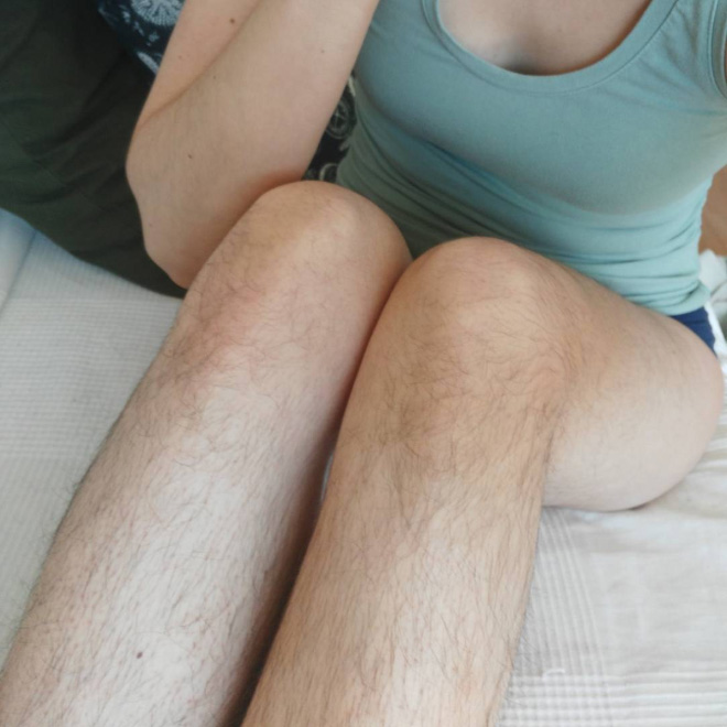 hairy legs and armpits