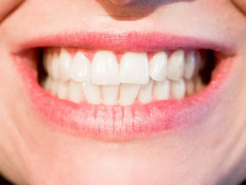 teeth 1652976 960 720 - Ancient Dentists Used Urine As Perfect Teeth Whitening Ingredient For Their Toothpaste