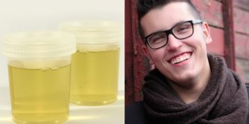 teeth and urine 360x180 - Ancient Dentists Used Urine As Perfect Teeth Whitening Ingredient For Their Toothpaste